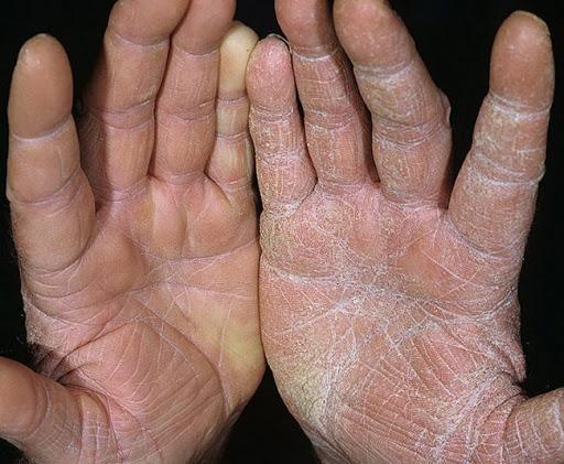 руки после антисептика фото
